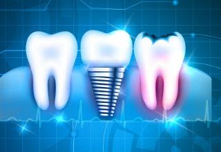 הדור הבא של השתלות השיניים